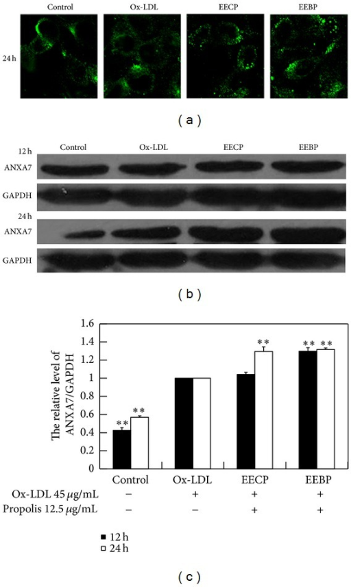 EECP and EEBP increased ANXA7 level in ox-LDL-stimulated HUVECs. (a) Fluorescent micrographs obtained at 24 h. (b) ANXA7 levels were detected by western blot analysis at 12 and 24 h. (c) The hemiquantification of ANXA7 level in HUVECs (**P < 0.01 versus ox-LDL group, n = 3).