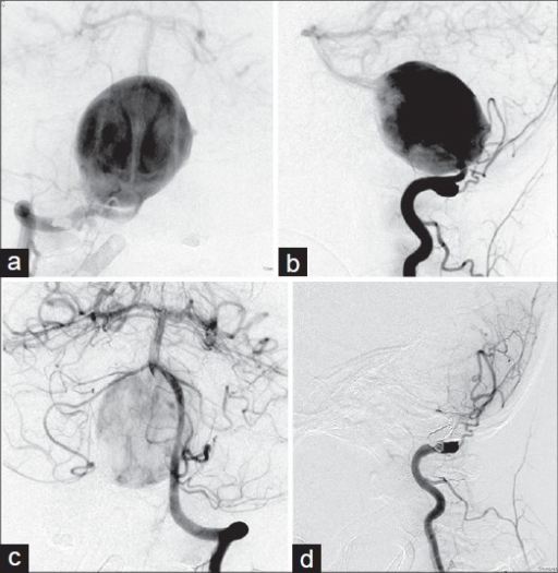 Right vertebral angiography demonstrates a giant vertebral artery aneurysm (dome size: 42×30×30 mm). The aneurysm arises from 2 cm distal to the posterior inferior cerebellar artery orifice to vertebrobasilar junction (a,b). Left vertebral angiography shows the lumen of the contralateral left vertebral artery had a similar caliber to ipsilateral one (c). Rt. Vertebral angiography after parent artery occlusion shows complete occlusion with preservation of PICA patency (d)