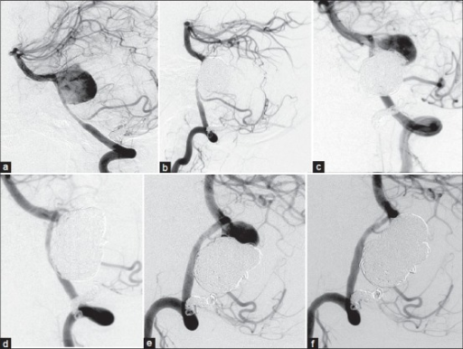 Left vertebral artery angiography 14 days after parent artery occlusion shows filling of the distal side of the residual aneurysm (a). Angiography reveals complete occlusion of the aneurysm after the third coil embolization (b). Second (before; c, after; d) and third (before; e, after; f) coil embolization demonstrates complete occlusion of the aneurysm