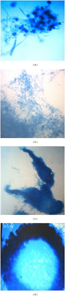 Growth pattern of T. evansii in the presence of different carbon sources in the culture medium containing potato-dextrose-agar (PDA, solid medium) (a). After 7 days of growth of the fungal culture in broth containing different carbon sources such as soya meal (SM) (b), guar gum (GG) (c), and wheat straw (WS) (d). The corresponding fungal floccules were stained with cotton blue and viewed under compound microscope for their comparison with that grown in PDA.