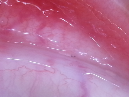 Solitary horizontal Oestrus ovis larva in the conjunctival fornix of the left eye. Zoom photography from smartphone mounted over a Dermlite 3 (trademark) polarized dermatoscope. (Copyright: ©2014 Naimer et al.)