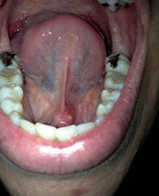 Tumefaction of region proximal to lower lingual frenulu ...