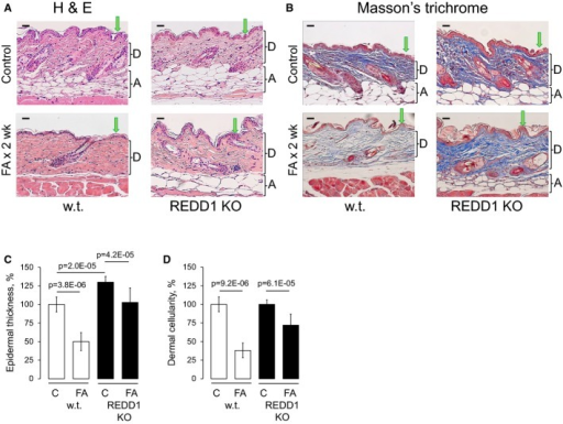 REDD1 KO mice are resistant to glucocorticoid-induced skin atrophyREDD1 KO and isogenic wild-type B6x129 mice were treated with acetone (vehicle control) or FA (2 μg/animal) every 72 h for 2 weeks.A, B H&E staining (A) and Masson's trichrome staining: Dermis/collagen fibers are blue, muscle is red, nuclei are dark red, and cytoplasm is red/pink (B). Arrows point to epidermis and brackets indicate subcutaneous adipose (A) and dermis (D). Scale bars are 20 μm.C, D Morphometric analysis of epidermal thickness and dermal cellularity as described in Materials and Methods. Changes in epidermal thickness (C) are presented as % to wild-type control epidermis. Changes in dermal cellularity (D) are presented as % to corresponding control skin. The means ± SD were calculated for three individual skin samples in one representative experiment (30 measurements/condition) out of two experiments. Statistical analysis for differences between treatment and control and between control wild-type and REDD1 KO epidermal thickness was done by the unpaired two-tailed t-test.