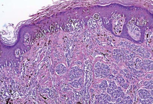 Area of pagetoid spread, with irregular distribution of pigmentation and irregularmaturation of melanocytes (HE, original magnification - 100x)