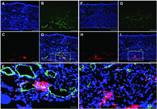 Migration and differentiation of Dii-labelled ASCs in the flap of diabetic mice by post-operative day 7 (A–E) and day 14 (F–J). (A, F) Nuclei (blue) were stained with Hoechst. (B, G) Endothelial cells (green) were immunostained with an anti-CD31 antibody. (C, H) ASCs labelled by Dii (red) appeared in the flap tissue. (D) Merged images of A–C. (I) Merged image of F–H. (E, J) Localized magnification of D and I. One of the engrafted Dii-labelled ASCs was found incorporated into the blood vessel wall (yellow) indicated by a white arrow in E. Scale bars: 100 μm (A–I) and 25 μm (E, J).