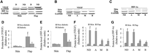 ASCs augment HIF-1α and VEGF expression in the flap tissue of diabetic mice. HIF-1α and VEGF levels in ischaemic skin segments of non-diabetic and diabetic mice were measured 72 hrs after surgery. (A) Flaps from diabetic mice produced less VEGF and HIF-1α than non-diabetic ones. (B) VEGF protein expression was significantly augmented in ischaemic skin segments of diabetic mice in ASCs group. (C) HIF-1α protein expression was significantly augmented in ischaemic skin segments of STZ-diabetic mice in ASCs group. (D, E) Western blot quantitation of (A). n = 4, *P < 0.05 versus skin. n = 4, #P < 0.05 versus diabetic, respectively. (F, G) Western blot quantitation of (B) and (C), respectively. n = 4, *P < 0.05 versus skin. n = 4, #P < 0.05 versus M and B groups, respectively. A: ASCs-treated group; M: medium-treated group; B: blank; D: diabetic; ND: non-diabetic.