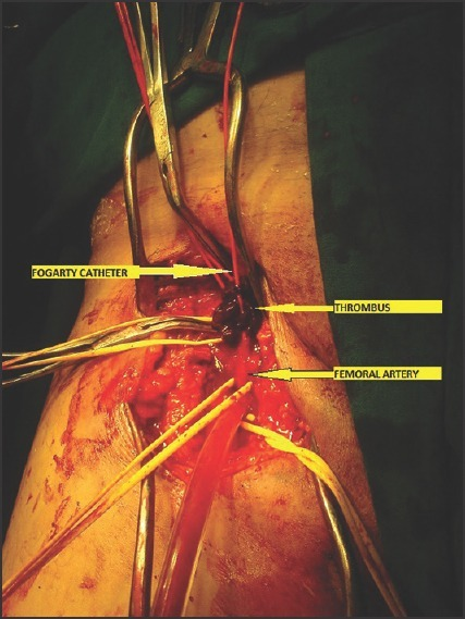 Femoral thrombectomy