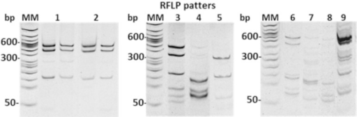 Amplified products (1-1.2 kb) of clinical samples of the ITS region betweenthe small and large subunits of rDNA locus from L. (V.)braziliensis were digested with HhaI (RFLP patterns). Among the 52clinical samples, nine restriction patterns were shown. Digested products wereresolved in 8% polyacrylamide gels stained with ethidium bromide. MM, 50-bpladder.