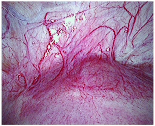 Laparoscopic image of CSP showing a topical purple bulge in the lower segment over the caesarean scar from a patient with CSP. CSP, caesarean scar pregnancy.