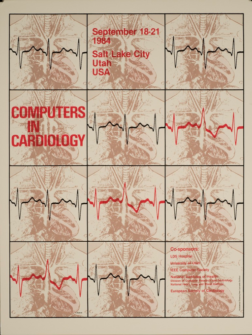 <p>A graphic of a human heartbeat (QRS complex) is over an anatomical drawing of the chest cavity from Leonardo DaVinci.</p>