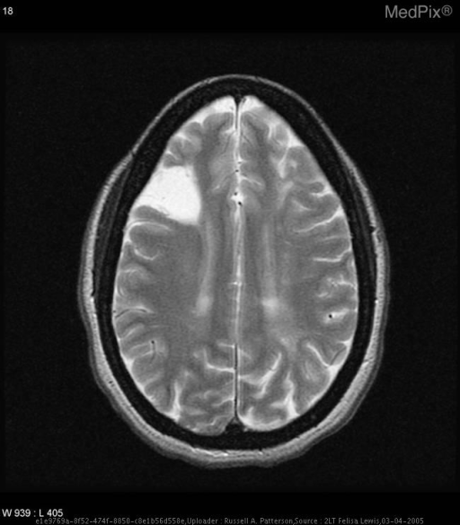 Large wedge-shaped region of encephalomalacia in the lateral R frontal lobe possibly secondary to prior infarct.
