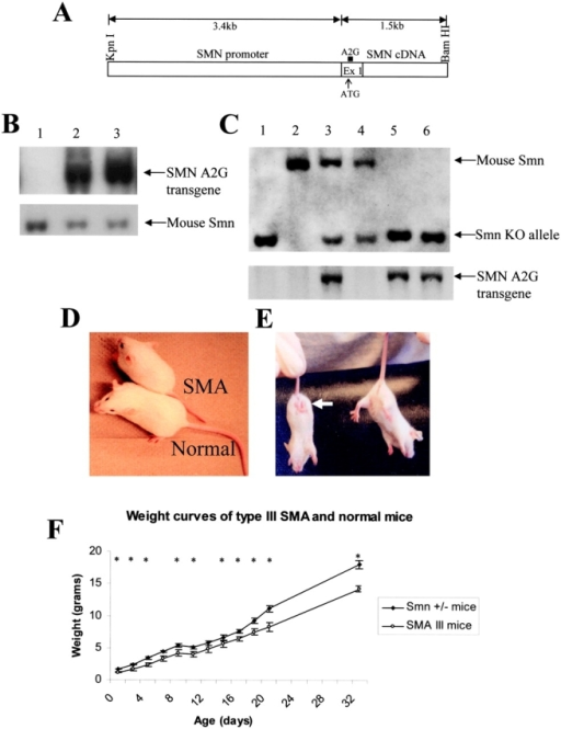 Generation and characterization of mild SMA mice. (A) Schematic representation of the 4.9-kb SMN A2G mutant transgene used to create transgenic mice. (B) Transgene copy number using Southern blot analysis. The blot was simultaneously probed with fragments that recognize the transgene and murine Smn, respectively. The latter, which is present in two copies per genome, serves as an internal control. Lane 1, DNA from a nontransgenic Smn+/+ animal; lane 2, line 2023; lane 3, line 2002. (C) Southern blot analysis after BamHI digestion of tail DNA from mice from line 2023. Presence/absence of the wild-type murine Smn and Smn knockout (KO) allele was determined using a probe in murine Smn intron 1. Lane 1, type I SMA mouse control; lane 2, Smn+/+ normal mouse; lane 3, SMN A2G;SMN2;Smn+/− female mouse; lane 4, SMN2;Smn+/− male lacking the A2G transgene; lanes 5 and 6, type III SMA pups of mice from lanes 3 and 4. Note that after genotyping for murine wild-type Smn and the KO alleles, the blot was stripped and reprobed to check for the presence of the A2G transgene. Genotyping for SMN2 was done by PCR (not depicted). 1-mo-old type III SMA mouse and a normal littermate showing a difference in size (D) and muscle weakness (E), as displayed by a hindlimb clasping reflex (arrow) in the former. Four of four type III SMA animals heterozygous for the A2G transgene displayed this reflex, compared with one out of four type III SMA animals homozygous for the mutant transgene and one of five normal littermates. (F) Weight curves of mild SMA mice (n = 5) heterozygous for the A2G transgene and SMN2 and normal littermates (n = 5). Error bars indicate standard deviation. An asterisk indicates that there was a significant difference (P < 0.05, t test) in weights measured on the given days. As adults (33 d of age), mild SMA mice were significantly smaller (14.16 ± 0.52 g; n = 5) than normal littermates (18.02 ± 1.08 g; n = 5).