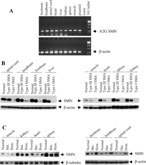 Expression analysis of the mutant SMN A2G transgene in transgenic mice. (A) RT-PCR on RNA from indicated tissues of an SMN A2G;Smn+/+ animal was performed as described in the Materials and methods. The β-actin gene was simultaneously amplified as a control. (B) Western blot analysis on 5-d-old type I SMA, type III SMA, and an Smn+/− mouse was performed using the anti-SMN monoclonal antibody, MANSMA2. The blot was subsequently stripped and probed with an anti–β-actin antibody to control for loading amounts. Type I SMA mice produce very little SMN, which is visible only after longer exposures. (C) Western blot analysis on 3.5-mo-old type III SMA mice (heterozygous for the A2G transgene, Het.), type III SMA mice (homozygous for the A2G transgene, Hom.), and normal mice (Smn+/−) using the anti-SMN monoclonal antibody, MANSMA2. β-actin or β-tubulin serve as loading controls.