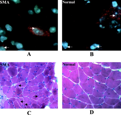 Immunocytochemical staining of spinal cord, and hematoxylin and eosin staining of muscle. Staining of SMN in spinal cord sections of (A) 1-mo-old SMN A2G;SMN2;Smn−/− type III SMA mouse and (B) an age-matched Smn+/−control. Type III SMA mice express SMN in the motor neurons (arrows). However, nuclear gems in these animals are less intense and not as numerous as those seen in normal littermates. (600× magnification). Gastrocnemius from the same animals was sectioned and stained with hematoxylin and eosin. Numerous angulated and atrophied fibers (arrows) are evident in (C) type III SMA muscle as compared with (D) normal muscle (200× magnification).