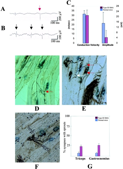 Electromyography and axonal sprouting in mild SMN mice. EMG recordings in (A) cranial tibial and (B) suprascapular muscle of 4-mo-old type III SMA mice. Spontaneous abnormal electrical activity was recorded in the form of fibrillation potentials (dark arrows) and occasional biphasic positive sharp waves (red arrow). (C) Quantification of MNCVs and the amplitudes of compound muscle action potentials in type III SMA mice and normal (Smn+/+) littermates. At least four mice from each group were analyzed. Data are given as mean ± SD. Although the amplitude was reduced in SMA mice (P < 0.05, t test), the MNCVs did not significantly change. Axonal sprouting in the (D) gastrocnemius and (E) triceps of type III SMA mice is a further sign of denervation. The former is an example of nodal sprouting whereas the latter depicts terminal sprouts (red arrows). Arrow in white indicates main axonal branch. Motor axons are silver stained in black while neuromuscular junctions stain blue. Normal gastrocnemius (F) shows at least three different motor axons, each innervating a separate muscle fiber (running diagonally from lower left to upper right; magnification 400×). Graphical representation (G) of the extent of sprouting (terminal and nodal) in type III SMA mice and unaffected littermates. Data are given as mean ± SD.
