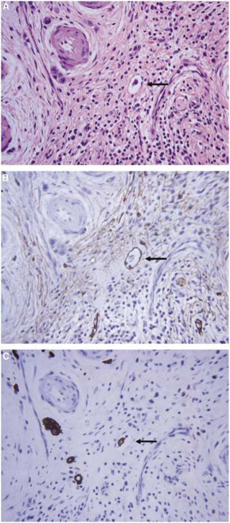 Example of a patient diagnosed as being free of lymphatic invasion by routine histological examination. (A) Routine haematoxylin–eosin staining. (B) D2-40 staining. (C) Cytokeratin (AE1/AE3) staining. Original magnification × 400.