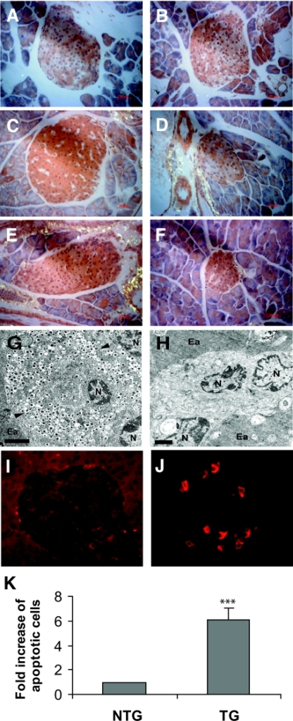 Light and electron microscopic analysis of structure and immunofluorescence study of apoptosis were performed in islets from representative nontransgenic (NTG) and human amylin transgenic (TG) mice. Congo red–stained section imaged under polarized light of representative islets from nontransgenic (A, C, and E) and transgenic (B, D, and F) mice at pre-diabetic (A and B), mid-diabetic (C and D), and late-diabetic (E, F) stages. Birefringence is collagenous. Magnification ×400. TEM images of islets from end-stage nontransgenic (G) and human amylin transgenic (H) mice. G: Normal β-cell insulin secretory granules with hallmark dense cores and surrounding halos (arrowed), healthy nucleus (N), and surrounding exocrine acini (Ea). H: Section from end-stage diabetic human amylin transgenic mouse showing characteristic absence of insulin secretory granules and margination of chromatin with invagination of the nuclear membrane typical of apoptosis and surrounding exocrine acini. Ea, endocrine acini; N, nucleus. Scale bars = 2 μm. Immunofluorescence staining for cleaved caspase-3 in nondiabetic nontransgenic mice (I) and mid-diabetic transgenic mice (J). K: Quantitative measurement of islet cell apoptosis by numeric counts of cleaved caspase-3–positive cells. Results are expressed as fold increase of apoptotic cells in transgenic mice compared with nontransgenic mice, whose numbers were set at unity. ***P < 0.001 vs. nontransgenic. (Please see http://dx.doi.org/10.2337/db06-1755 for a high-quality digital representation of this figure.)