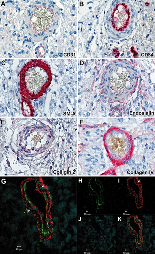 Expression of the various markers in layered hypertrophic blood vessels in glioma. CD31 and CD34 are expressed in the endothelial layer. CD105 and endosialin are expressed in the endothelium and the external layer. αSMA, NG2 and collagen IV are expressed in the intermediate and external layers, not in the endothelium. Colligin 2 is expressed in all layers of the vessels (panels A–F: ×40). G–K. Confocal images of layered hypertrophic blood vessels in glioma for the expression of CD105. Double immunolabeling for CD105/colligin 2. The endothelial cells and the external cells express both CD105 and colligin 2, while the intermediate cells express colligin 2 only (arrows) (panel H: green = CD105; panel I: red = colligin 2; panel J: blue = DAPI; panel K: merged picture).