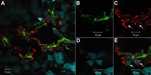Confocal images of glioma blood vessels for the expression of colligin 2 by activated (CD105-positive) endothelial cells. A–E. Double immunolabeling for CD105/colligin 2 in hypertrophied blood vessel. CD105 and colligin 2 are expressed by endothelial cells while the cells around the endothelium express only colligin 2 (arrows) (panel B: green = CD105; panel C: red = colligin 2; panel D: blue = 4′,6-diamidino-2-phenylindole; panel E: merged picture).