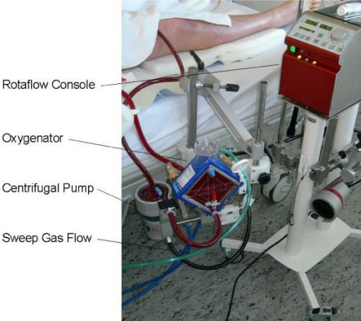 Extracorporeal membrane oxygenation device giftsforsubs miniaturized de fandeluxe Choice Image