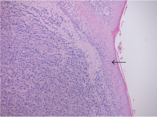 Tonsillar tissue with intact surface squamous epithelium (arrow) and underlying diffuse infiltrate of neoplastic plasma cells (H & E stain, x10).