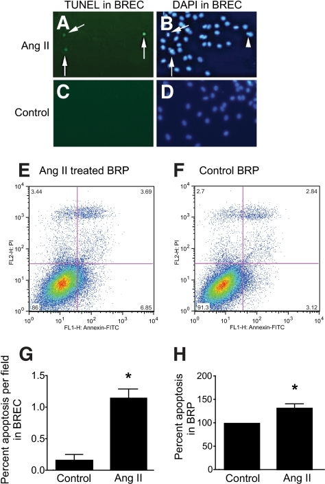 BREC and BRP apoptosis as detected by TUNEL staining and flow cytometry, respectively, after treatment with Ang II. In BREC, TUNEL staining is increased after treatment with 100 nmol/l Ang II for 24 h (A) compared with control (C). DAPI nuclear staining of Ang II-treated (B) and control (D) BREC. Arrows denote TUNEL-positive BREC, and arrowhead denotes cellular blebbing, a common feature of apoptosis. Magnification ×200. Representative example of Annexin V-FITC (x-axis) and propidium iodide (PI) staining (y-axis) to detect apoptotic cells after treatment of BRP with 100 nmol/l Ang II (E) or control (F) for 24 h. Increases were observed in the Annexin V positive, or early apoptotic phase (bottom right-hand quadrant), and Annexin V positive/PI positive (top right-hand quadrant), or late apoptotic phase (E). Bottom left quadrant, viable cells; Top left quadrant, necrotic cells (PI staining only). G: Graphical representation of BREC apoptosis detected by TUNEL staining; *P < 0.01 versus control. N = 3 samples and is a representative dataset of three independent experiments. H: Graphical representation of BRP apoptosis detected by Annexin/PI staining; *P < 0.03 versus control. All data were analyzed by unpaired t tests. N = 3 independent experiments. Values are mean ± SEM. (A high-quality color representation of this figure is available in the online issue.)