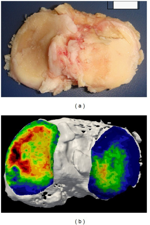Tibial plateau of an elderly patient showing end-stage OA with complete cartilage loss (a). Computed tomography osteoabsorptiometry (CT-OAM) indicates high bone density in red (b).