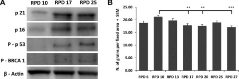 Activation of the DNA damage signalling pathway and efficiency of NER. Samples from different RPD were analysed by Western blotting for p16 and p21 protein expression and p53 and BRCA1 protein phosphorilation (A). β-actin served as loading control. NER efficiency was determined at several RPD after in vitro expansion using the unscheduled DNA synthesis assays. Error bars represent standard deviation. Statistical analysis was performed using one-way anova and Tukey post-test with a significance level of 0.05. **P < 0.01 and ***P < 0.001.