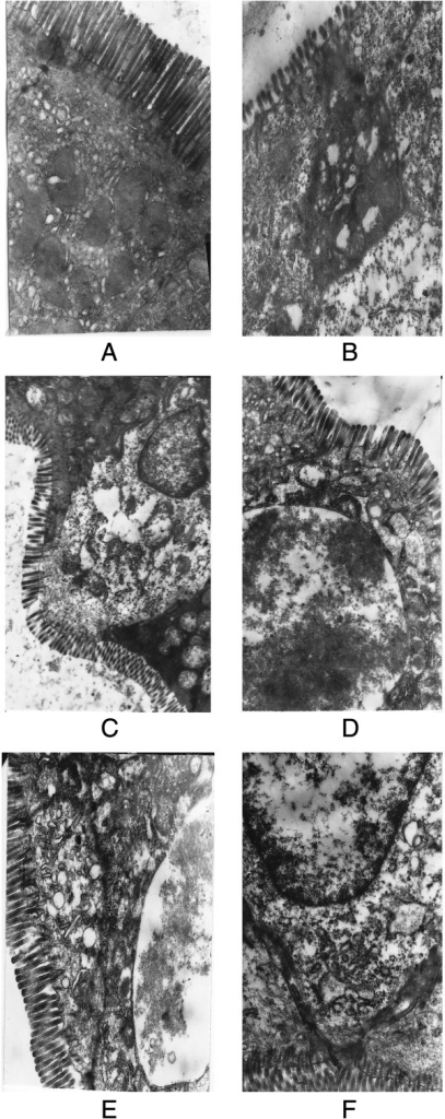 The expression of tight junctions and microvilli of small intestine cell under electron microscopy. (A) The expression of tight junctions and microvili in control group; (B) The expression of tight junctions and microvili in alcohol group; (C) The expression of tight junctions and microvili in glutamine group; (D) The expression of tight junctions and microvili in VSL#3 group; (E) The expression of tight junctions and microvili in VSL#3+glutamine group; (F) The expression of tight junctions and microvili in placebo group.