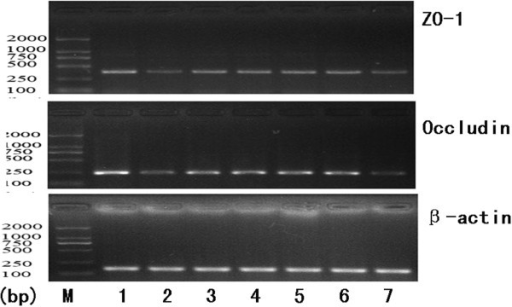 RT-PCR to measure expression of mRNAs encoding tight junction proteins (occludin and ZO-1). 1. control group; 2.alcohol group; 3. Glutamine group; 4. VSL#3 group; 5. VSL#3 + Glutaminegroup; 6. heat-killed VSL#3 group ; 7. placebo group.