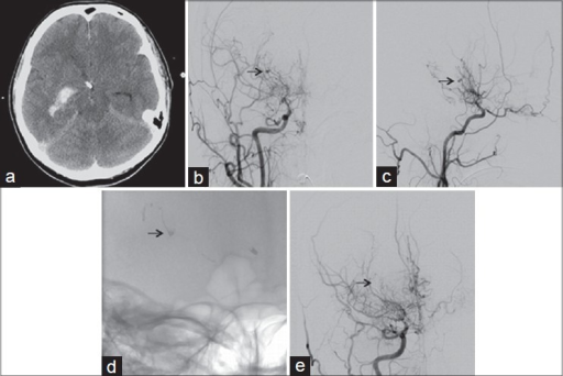(a) CT scan of the brain demonstrating diffuse subarachnoid hemorrhage with intraventricular extension into the right temporal horn. (b, c) Right internal carotid artery (ICA) digital subtraction angiography (DSA) anterio-posterior (AP) view and lateral view, demonstrating advanced moyamoya disease with right middle cerebral artery (MCA) occlusion and collaterals originating from the ICA partially reconstituting the MCA. There is a 3-mm aneurysm seen on one of the thalamostriate vessels (arrow). (d) Fluoroscopic image of the skull (AP view) post n-BCA glue embolization of the thalamostriate aneurysm along with the feeding vessel. The aneurysm is filled with n-BCA glue cast (arrow). (e) AP view of right ICA DSA post n-BCA embolization. The aneurysm is completely obliterated (arrow: location of obliterated aneurysm)
