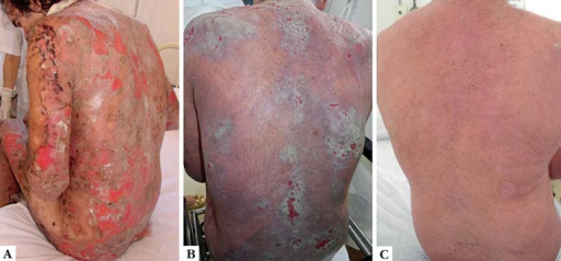 (CASE 1): A: extensive erosion of lesions on the trunk and limbs, inthe first phase of exacerbation of the disease before beginning treatment withintravenous immunoglobulin. B: dorsolumbar region afterplasmapheresis, before beginning treatment with rituximab. C:dorsolumbar region after the end of second cycle of rituximab, three months afterthe first infusion