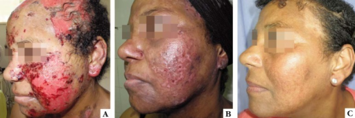 (CASE 2): A: erosions on face and scalp, after the third rituximabinfusion. B: healing of lesions on the face three weeks after thefourth rituximab infusion, increase of prednisone dose and introduction of MMF.C: face and scalp 18 months after the end of rituximabinfusions