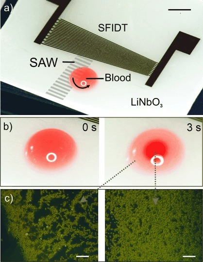 a) Photograph of the device comprising a slanted-finger interdigitated electrode (SFIDT) on LiNbO3. The surface acoustic wave (SAW) is generated at a defined position asymmetrically with respect to the drop of blood, thereby inducing a rotational motion within the drop. Scale bar: 3 mm. b) Photographs of a droplet of blood before (left) and after (right) actuation with SAW (3 s). In the actuated droplet, the red blood cells (RBCs) are concentrated in the middle, while infected RBCs (iRBCs) are enriched at the periphery. Scale bars: 1.5 mm. c) Fluorescent micrographs of the enriched iRBCs at the periphery (left) and concentrated RBCs in the center of the drop (right). Acridine orange (1.5 μg mL−1) was added to the solution to stain the parasites. Scale bars: 100 μm.