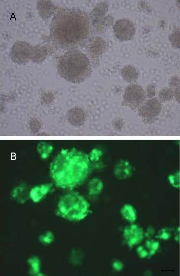 Observation of enhanced green fluorescent protein (EGFP) expression in neural stem cells (NSCs) after rAAV-SHH-EGFP infection (× 100).(A) Primary culture of NSCs after rAAV-SHH-N-EGFP infection for 14 days.(B) The same cells shown in A, observed under inverted fluorescence microscope.rAAV: Recombinant adeno-associated virus; SHH: sonic hedgehog.