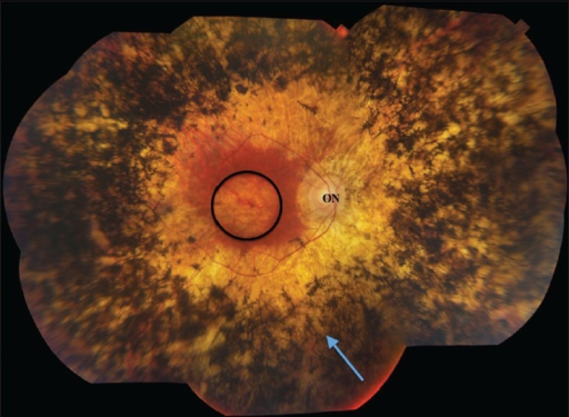 Fundus imaging of advanced human retinitis pigmentosa. Bone spicule pigment from invading retinal pigment epithelial cells (arrow) dominates the retinal periphery. Retinal thinning is extensive, with relative macular preservation. ON, optic nerve head; circle, macula.