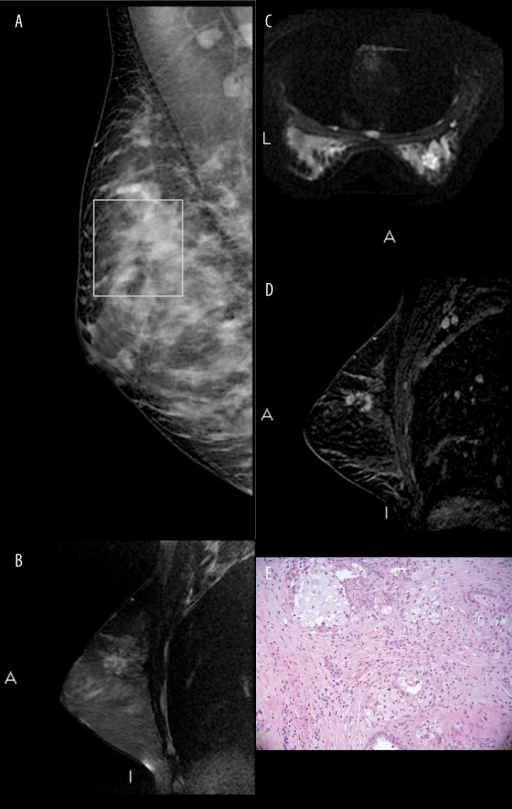 Radiological and histopathological features of case 1, right breast. (A) Right mediolateral oblique view: distortion of breast parenchyma between the upper quadrants showing inhomogeneous density and star-like appearance, but no radio-opaque nucleus. (B, C) Irregular mass between the upper quadrants exhibiting heterogeneous hyperintensity in sagittal T2-weighted images (FSE with fat saturation) (B) and hyperintensity on DW (Diffusion Weighted) sequences (b value 600 s/mm2) without diffusion restriction (C). (D) Irregular mass with spiculated margins showing rim enhancement and persistent enhancement in the sagittal subtraction images obtained before and after contrast medium administration. (E) Histopathological examination: fibrocystic breast tissue with a sclerosing adenosis lesion and columnar cell metaplasia/hyperplasia.