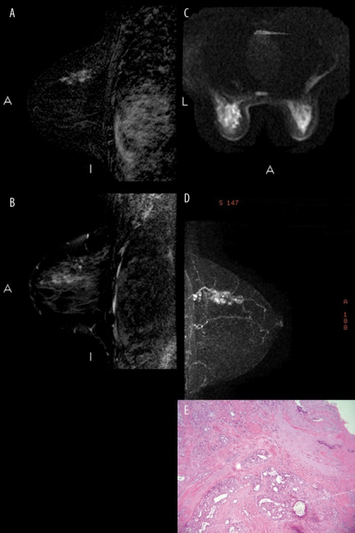 Radiological and histopathological features of case 2, left breast. (A) Regional clumped non-mass-like enhancement in the superomedial quadrant in the subtraction image obtained before and after contrast medium administration. (B) Only a few microcysts are depicted at the site of the non-mass-like enhancement in the sagittal T2-weighted image (FSE with fat saturation). (C) At the same site, DW (Diffusion Weighted) sequences (b value 600 s/mm2) show an area of inhomogeneous hyperintensity with diffusion restriction. (D) MIP (maximum intensity projection) image showing non-mass-like enhancement associated with asymmetrically increased vascularity. (E) Histopathology: complex sclerosing adenosis lesion associated with usual ductal hyperplasia (UDH) and florid UDH.