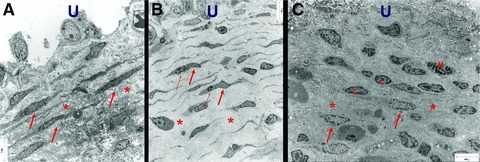 Electron micrograph of ULP ICLC in control (A), NDO, (B) and BPS (C) bladders. (A) Many parallel layers of ICLC (arrows) embedded in a dense extracellular matrix (asterisk). (B) Multiple parallel layers of slender ICLC (thick arrow) often in close association with lymphocytes (thin arrow). Note the large intercellular space (asterisk) filled with less dense intercellular matrix components. (C) Fragmented layers of ICLC (arrows). Note the presence of lymphocytes (l) and mast cells (m). Dense extracellular matrix components are obvious (asterisk). Scale bars: 7 μm. U: urothelial area.