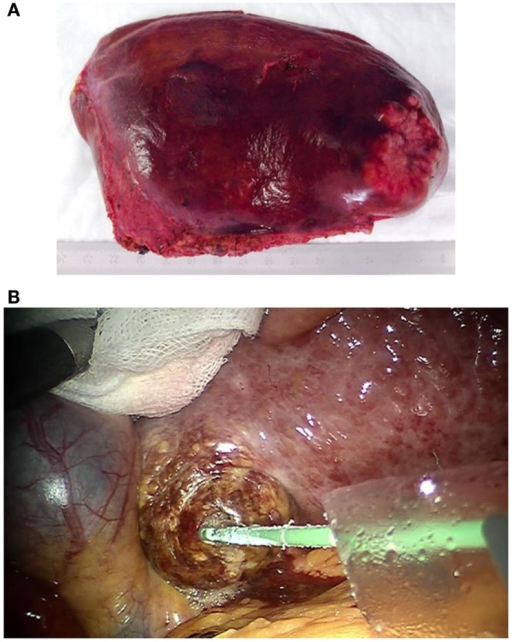 (A) Robotic resected and via pfannenstiel incision removed left lateral liver containing rectal cancer liver metastasis. (B) Robotic guided HCC microwave ablation. The needle is placed via a 10 mm laparoscopic trocar. A sponge is used to protect the liver tissue during the exposure.
