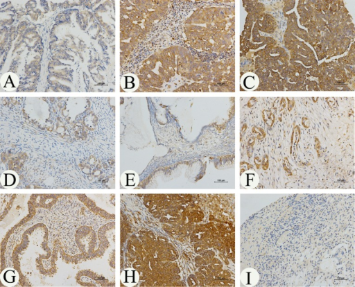 Immunohistochemical analysis of MARCH7 expression in ovarian cancerMARCH7 was predominantly localized in the (A) plasma membrane, (B, C, D, E) cytoplasm. The expression of MARCH7 in different types of ovarian cancer samples. (A). serous papillary adenocarcinoma (stage I); (B). serous papillary adenocarcinoma (stage IIIA); (C). serous papillary adenocarcinoma (stage IIIC); (D). mucinous adenocarcinoma mucinous adenocarcinoma (stage IA); (E). mucinous adenocarcinoma mucinous adenocarcinoma (stage IB) ; (F). mucinous adenocarcinoma mucinous adenocarcinoma (stage III); (G). endometrioid adenocarcinoma(stage I); (H). endometrioid adenocarcinoma(stage III); (I). normal ovarian tissue. Original magnification, 200X.