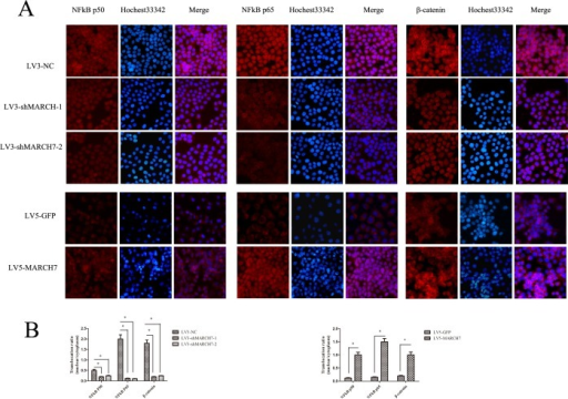 (A) The expression of NFkB P65, NFkB P50, and β-catenin was detected by immunofluorescence staining in ovarian cancer SKOV3 cells (LV3-shMARCH7-1 or LV3-shMARCH7-2 infected) and A2780 cells (LV5-MARCH7 infected). (B). The nuclear translocation of NFkB P65, NFkB P50, and β-catenin was decreased in LV3-shMARCH7-1 or LV3-shMARCH7-2 infected ovarian cancer SKOV3 cells as compared with LV3-NC infected cells. The nuclear translocation of NFkB P65, NFkB P50, and β-catenin was increased in LV5-MARCH7 infected ovarian cancer A2780 cells compared with LV5-GFP infected cells. Original magnification ×200. Data are expressed as Mean ± SD from three independent experiments. * p < 0.05, and **p < 0.001.