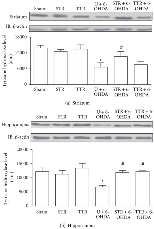 The effects of two physical training protocols on TH levels (a and b) in the striatum and hippocampus of mice exposed to 6-OHDA. Protein levels were assayed by western blotting. Values are expressed as mean ± SEM (n = 3). ∗P < 0.05, Sham versus U + 6-OHDA; #P < 0.05, U + 6-OHDA versus training groups + 6-OHDA. Untrained + vehicle (Sham), strength training + vehicle (STR), treadmill training + vehicle (TTR), untrained + 6-OHDA (U + 6-OHDA), strength training + 6-OHDA (STR + 6-OHDA), and treadmill training + 6-OHDA (TTR + 6-OHDA).