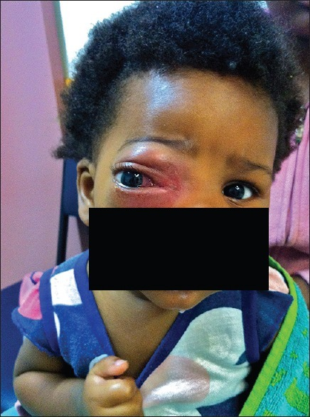 Right nonaxial proptosis with periorbital edema, erythema, and nasal conjunctival chemosis
