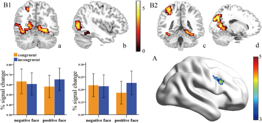 (A) Regional brain activation for the congruency effect: DLPFC. (B) Regional brain activation for the contrast of [(ip-cp)-(in-cn)]. (B1) Significant activation was found in areas associated with emotional face processing (FFA, MOG, MTG). a: fusiform gyrus (FFA), b: middle occipital gyrus (MOG), middle temporal gyrus (MTG). Specific activity patterns across four experimental conditions for these areas were showed in the bottom panel. (B2) Significant activation was found in DMN (PCC/precuneus), IPL. c: inferior parietal lobule (IPL), d: precuneus/posterior cingulate gyrus (PCC).