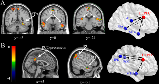 PPI results for negative and positive face contexts.(A) In the negative face context: negative coupling patterns between the seed region (DLPFC) and brain regions associated with emotional conflict processing. (B) In the positive face context: negative coupling patterns between the seed region (DLPFC) and brain regions in DMN (PCC/precuneus, IPL), as well as MTG.