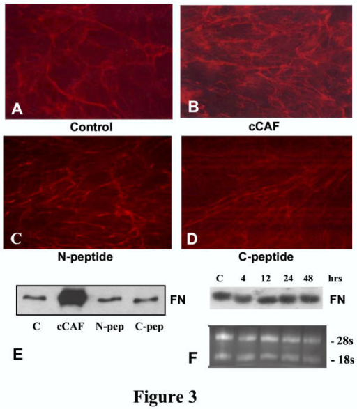 Effect of cCAF on FN levels in culture. Embryonic connective tissue fibroblasts immunolabeled for FN. (A) Untreated 3 day-old cultures show FN fibers over the cells. (B) Cultures treated with cCAF for 3 days show more fibers, and the staining is more intense than those in the controls. (C,D) Cells treated with the same amounts of N-peptide or C-peptide have levels of FN similar to control. (E) Immunoblot analysis of cells treated with cCAF show higher levels of FN than untreated or peptide-treated cells. All lanes contain equal amounts of total protein, as measured by the DC protein assay (BioRad). (F) Northern blot analysis for FN shows no difference in mRNA levels between control and cells treated with cCAF for times up to 48 hours.