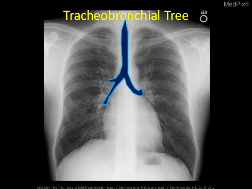 The tracheobronchial tree (blue) begins as the trachea in the subglottic area (below the vocal cords) and extends down to the bifurcation into the right and left mainstem bronchi.