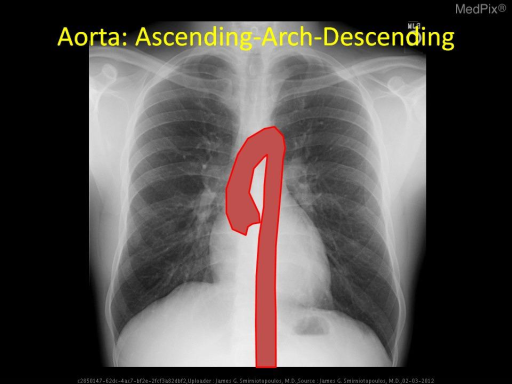 The aorta (red) begins at the tricuspid aortic valve with the root - then the ascending aorta (midline to slightly right) - the aortic arch (with branches for the right brachiocephalic, left common carotid, and left subclavian) - then the descending thoracic aorta.