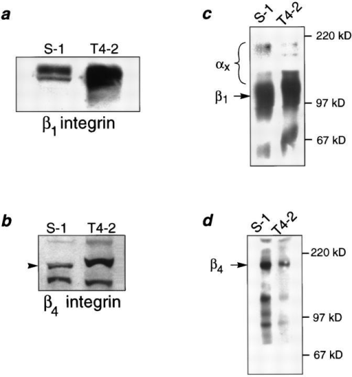 Biochemical characterization of integrins in the HMT3522 cells after culture in 3-dimensions. (a and b) Western analysis of β1- and β4-integrins: Total cell lysates of S-1 and T4-2 colonies showed elevated expression of β1- (a) and β4-integrins (b) in  the tumor cell colonies. (c and d) Cell surface expression of β1-  and β4-integrin heterodimers using biotinylation: Tumor colonies  had 12.5% higher plasma membrane levels of β1- (c) but 60%  lower levels of β4-integrin heterodimers (d) than S-1 acini. (e)  Relative scan units (RSU) showing relative colony surface levels  of β1- and β4-integrin heterodimers: There was a 2.8-fold relative  increase in the ratio of β1-integrins to β4-integrin on the colony  cell surface of T4-2 colonies as compared to the S-1 acini. All cells  were analyzed after 10–12 d inside EHS.